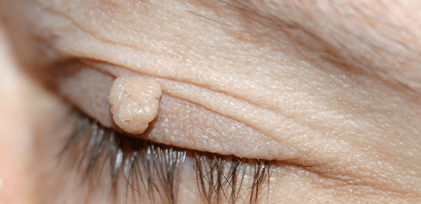 Natural Ways to Remove Skin Tags and Warts 1a